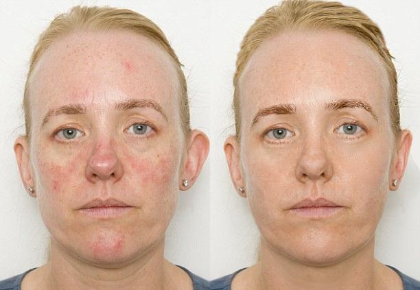 Устранение акне, восполнений, коррекция формы лица